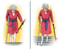 Rehabilitar prótesis rodilla - Subir y bajar