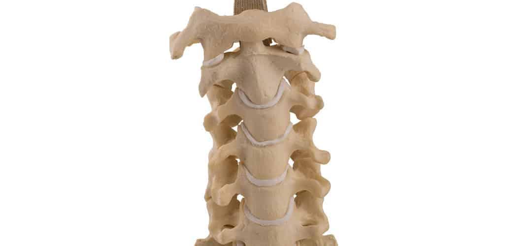 Fracturas por acuñamiento vertebral